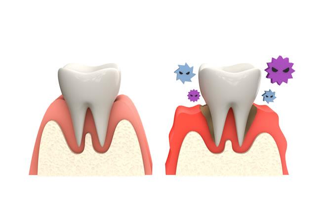「ひまわり歯科」歯・歯周検査