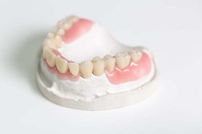 「ひまわり歯科」留め金のなく審美性の高いノンクラスプ義歯