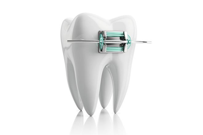 「ひまわり歯科」歯並びを整える歯列矯正・小児咬合誘導・少数歯移動