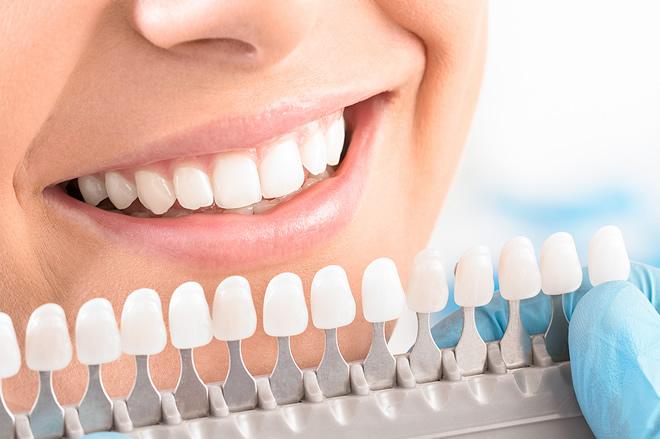 「ひまわり歯科」審美治療