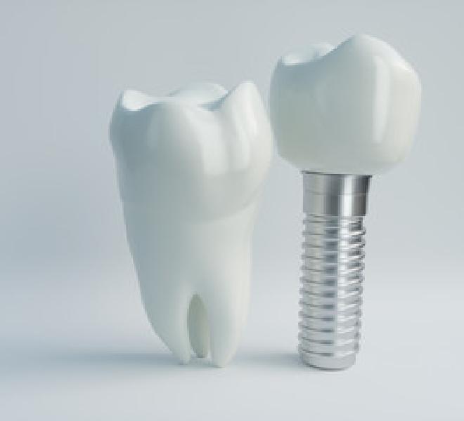 広島県安芸郡海田町の歯科医院「ひまわり歯科」噛む機能と見た目の回復を得られるインプラント治療