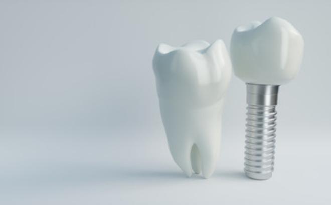 「ひまわり歯科」インプラント
