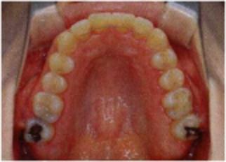 「ひまわり歯科」上顎咬合面写真