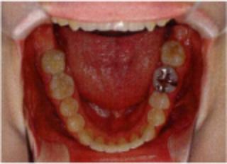 「ひまわり歯科」下顎咬合面写真