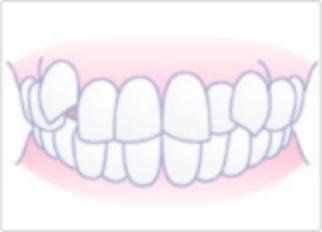 「ひまわり歯科」叢生(でこぼこ)