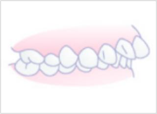 「ひまわり歯科」上顎前突(出っ歯)