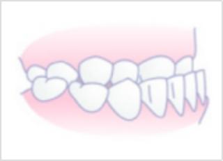 「ひまわり歯科」反対咬合(受け口)