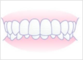 「ひまわり歯科」過蓋咬合