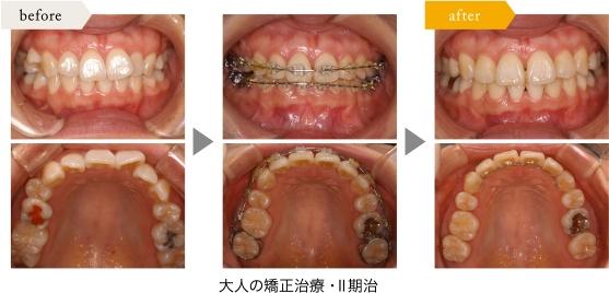 「ひまわり歯科」大人の矯正治療・Ⅱ期治療