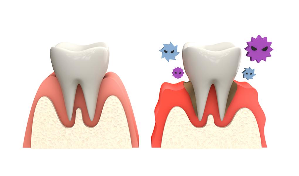 「ひまわり歯科」歯周病の基本検査