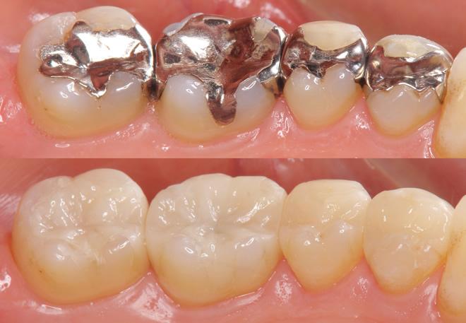 「ひまわり歯科」セラミックインレー・セラミック冠