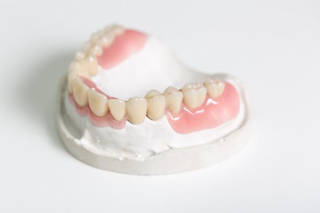 「ひまわり歯科」ノンクラスプ義歯(金属のばねが目立たない義歯)