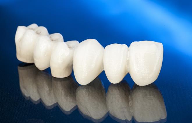 「ひまわり歯科」健康保険治療における審美治療の限界